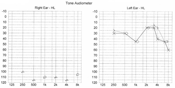 tone audiometer test